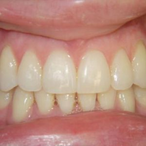 Misaligned Teeth in Lower Front After Treatment | West Liberty, IA | Gentle Family Dentists