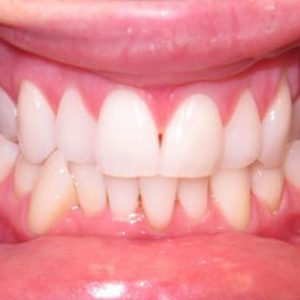Misaligned Teeth in Lower Front Before Treatment | West Liberty, IA | Gentle Family Dentists