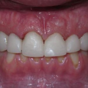 Teeth with Cavities and Plaque After Treatment | West Liberty, IA | Gentle Family Dentists