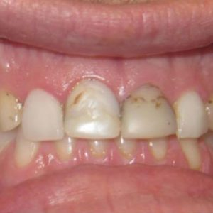 Teeth with Cavities and Plaque Before Treatment | West Liberty, IA | Gentle Family Dentists