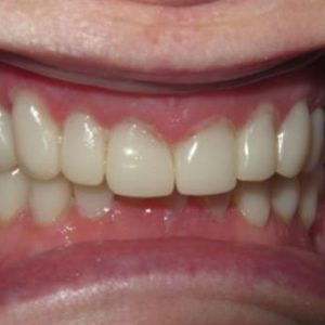 Grinded Teeth Restored After Treatment | West Liberty, IA | Gentle Family Dentists