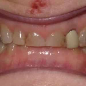 Grinded Teeth Before Treatment | West Liberty, IA | Gentle Family Dentists