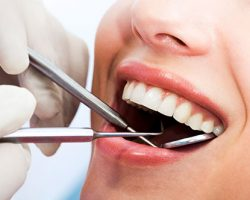 Woman's Mouth undergoing dental examination | Dental Cleanings and Exams in West Liberty, IA and Muscatine, IA | Gentle Family Dentists