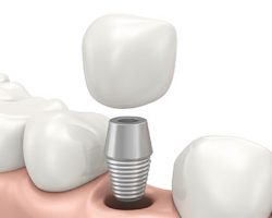 Detailed Illustration of Dental Implants | Dental Implants in West Liberty, IA and Muscatine, IA | Gentle Family Dentists
