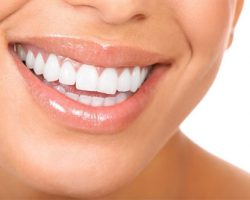 Photo of a Beautiful Teeth | Gum Disease Treatment in West Liberty, IA and Muscatine, IA | Gentle Family Dentists